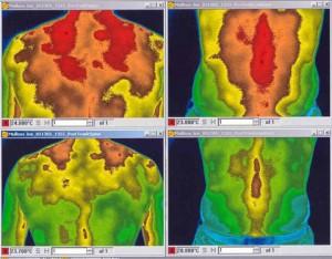 smerte plaster fra Lifewave - temisk kamera der viser reducering af betændelse i kroppen